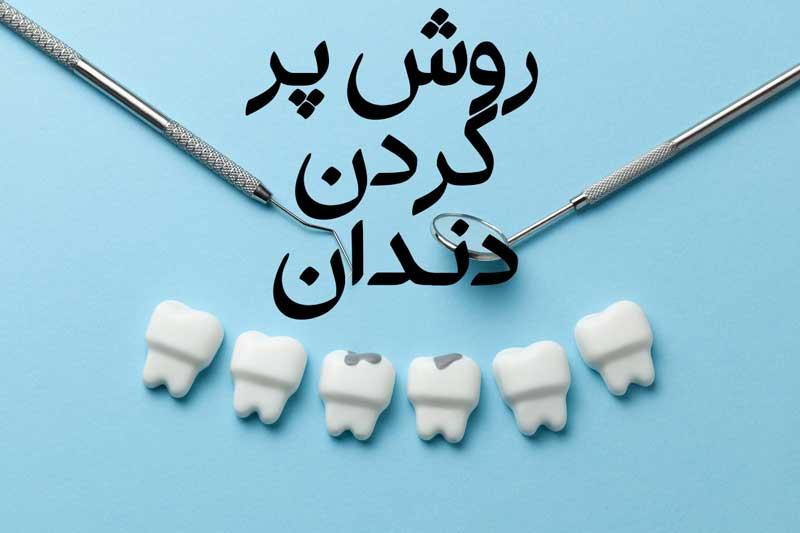 روش پر کردن دندان