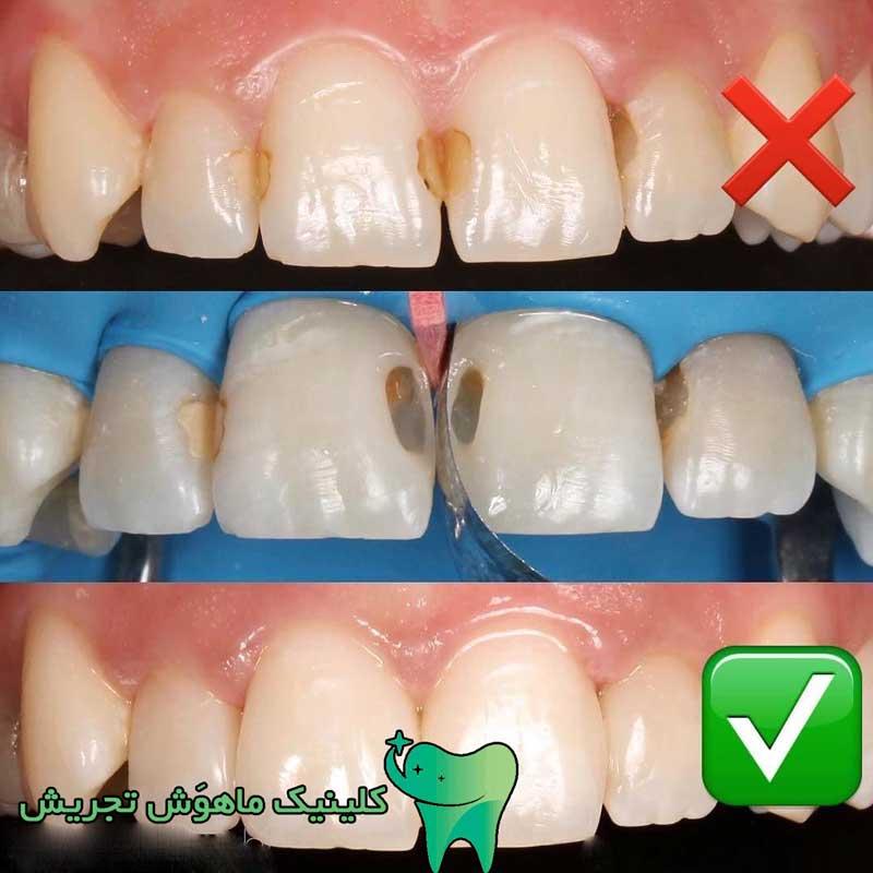مراحل پر گردن دندان