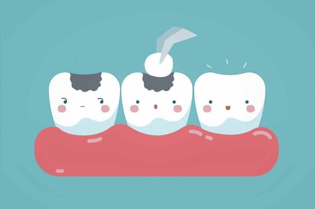 پر کردن دندان اطفال