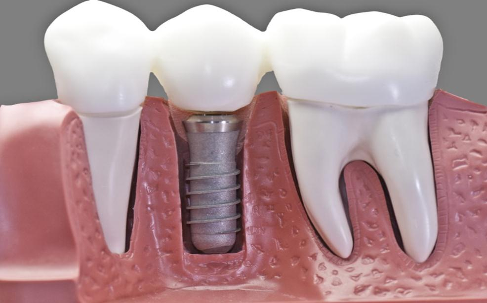 مزایا ایمپلنت دندان