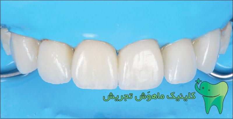 لمینت دندان چیست؟