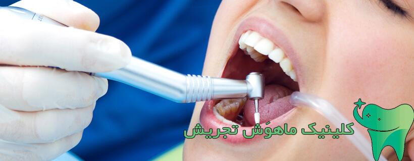 جرم گیری دندان دستگاه