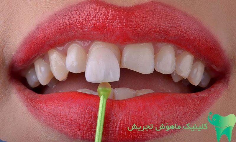 درباره مزیت های دندان