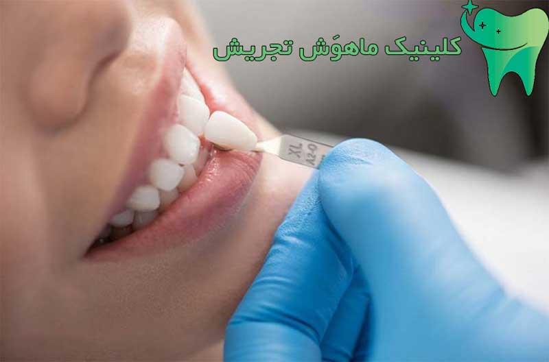مراحل لمنیت دندان
