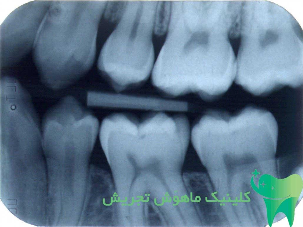 رادیولوژی دندان